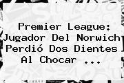 <b>Premier League</b>: Jugador Del Norwich Perdió Dos Dientes Al Chocar <b>...</b>