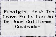 <b>Pubalgia</b>, ¿qué Tan Grave Es La Lesión De Juan Guillermo Cuadrado?