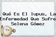 Qué Es El <b>lupus</b>, La Enfermedad Que Sufre Selena Gómez