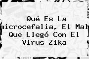Qué Es La <b>microcefalia</b>, El Mal Que Llegó Con El Virus Zika