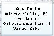 Qué Es La <b>microcefalia</b>, El Trastorno Relacionado Con El Virus Zika