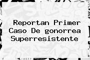 Reportan Primer Caso De <b>gonorrea</b> Superresistente