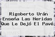 <b>Rigoberto Urán</b> Enseña Las Heridas Que Le Dejó El Pavé