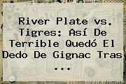 <b>River</b> Plate <b>vs</b>. <b>Tigres</b>: Así De Terrible Quedó El Dedo De Gignac Tras <b>...</b>
