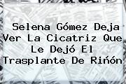 <b>Selena Gómez</b> Deja Ver La Cicatriz Que Le Dejó El Trasplante De Riñón