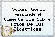 <b>Selena Gómez</b> Responde A Comentarios Sobre Fotos De Sus Cicatrices