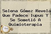 Selena Gómez Revela Que Padece <b>lupus</b> Y Se Sometió A Quimioterapia