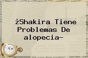 ¿Shakira Tiene Problemas De <b>alopecia</b>?