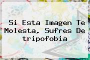 Si Esta Imagen Te Molesta, Sufres De <b>tripofobia</b>