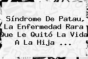 <b>Síndrome De Patau</b>, La Enfermedad Rara Que Le Quitó La Vida A La Hija ...