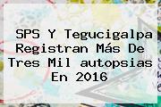 SPS Y Tegucigalpa Registran Más De Tres Mil <b>autopsias</b> En 2016