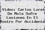 Video: Carlos <b>Loret De Mola</b> Sufre Lesiones En El Rostro Por Accidente