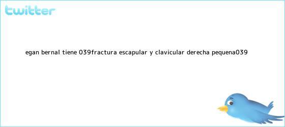 trinos de <b>Egan Bernal</b> tiene &#039;fractura escapular y clavicular derecha pequeña&#039;