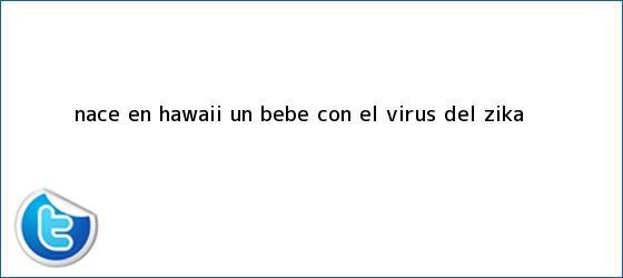 trinos de Nace en Hawaii un bebé con el virus del <b>Zika</b>