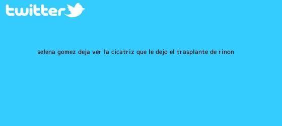 trinos de <b>Selena Gómez</b> deja ver la cicatriz que le dejó el trasplante de riñón