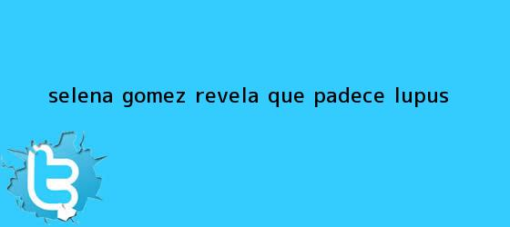 trinos de Selena Gómez revela que padece <b>lupus</b>